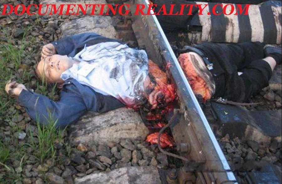 列車に轢断されて腰の位置で真っ二つになった投身自殺者の死体
