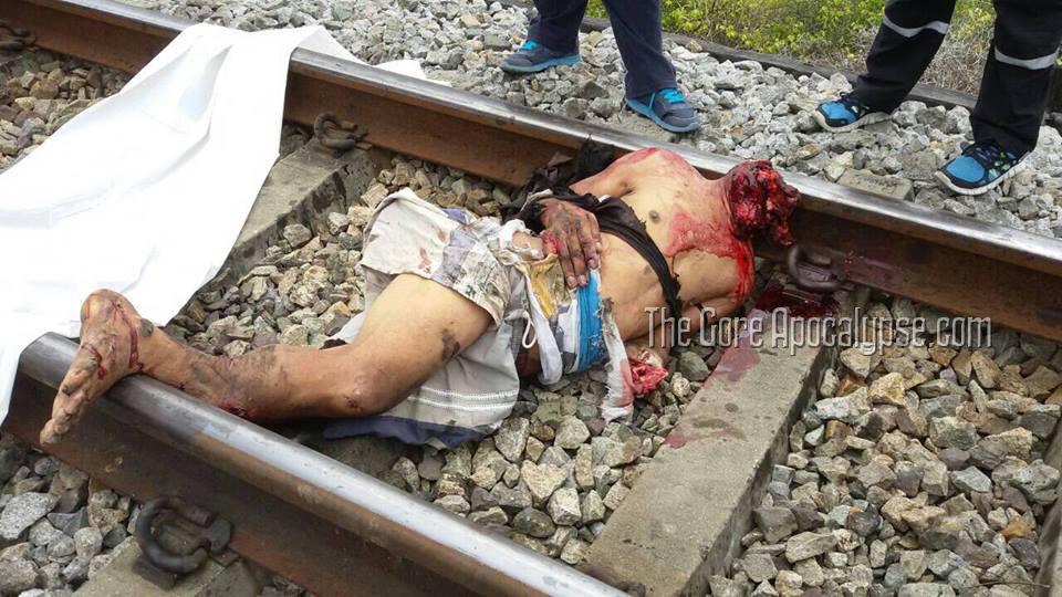 頭部がもげた飛び込み自殺者の死体